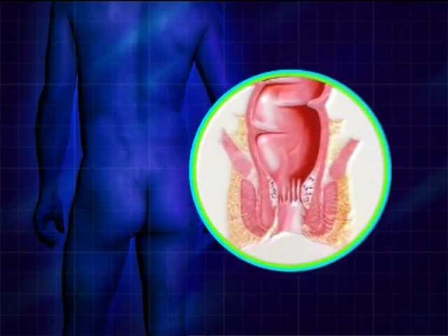 Тромбоз наружных геморроидальных узлов видео