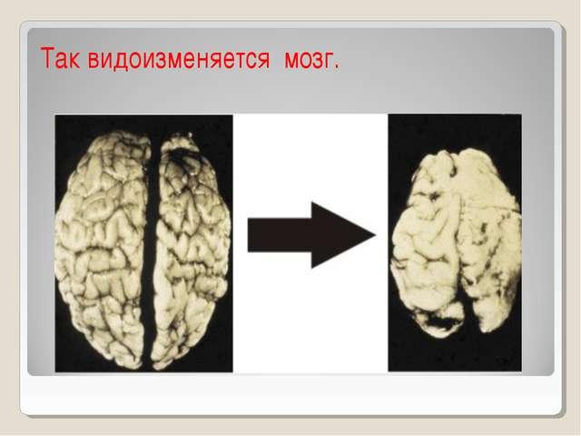 Недуг влияет на мозг