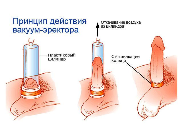 Увеличение члена пениса операционным путём