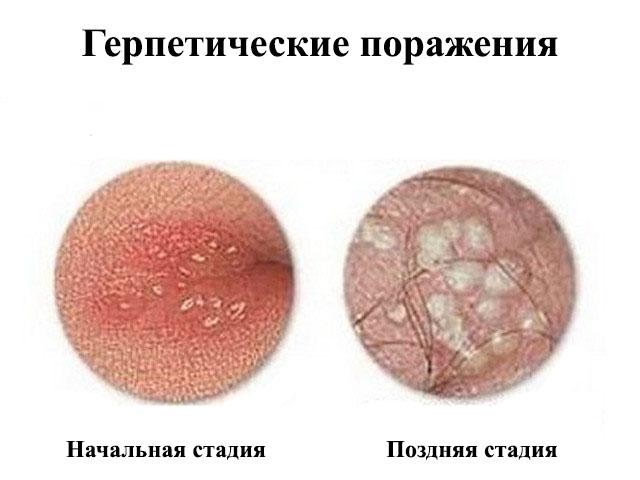 Генитальный герпес лечение у мужчин и женщин
