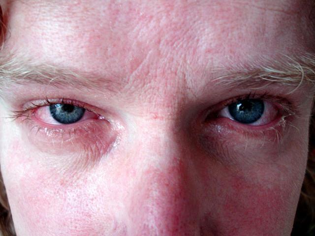 Органы зрения