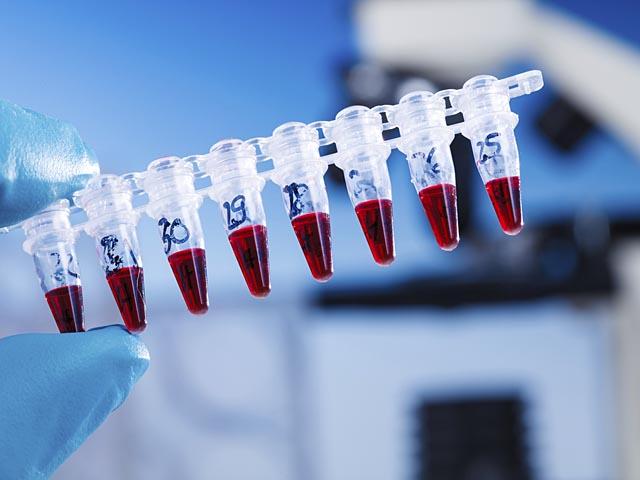 Кровь в лаборатории