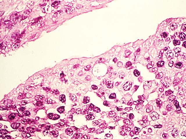 Вредные микроорганизмы