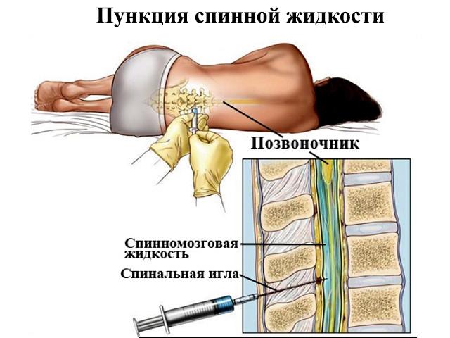 сифилис и люмбальная пункция форум Харьковская