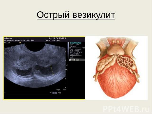 Снимок для диагностики