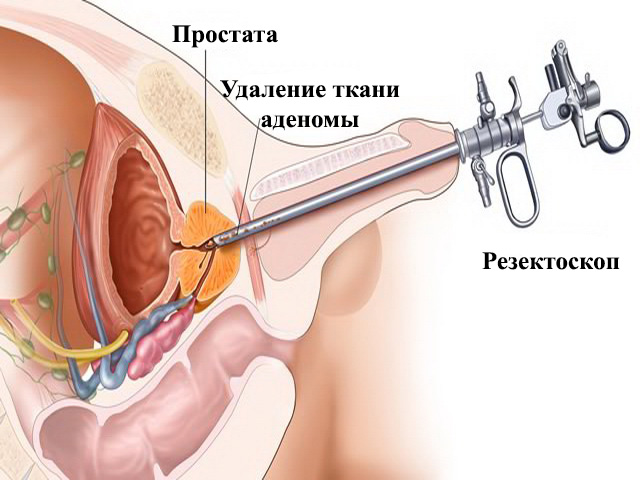 Чем опасна операция по удалению аденомы простаты