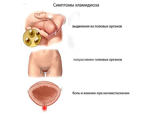 zud-posle-seksa-s-prezervativom