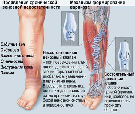 причины возникновения варикоза на ногах у мужчин