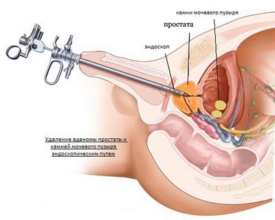 Цистоскопия мочевого пузыря у мужчин, подготовка детей: фото и видео