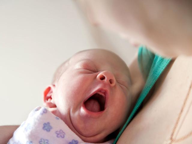 удаление кожи у новорожденных