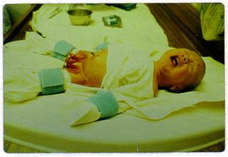 Период восстановления после обрезания