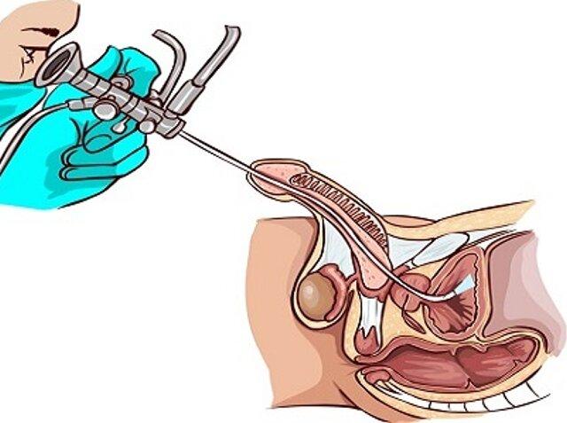 Инстилляция мочевого пузыря проведение