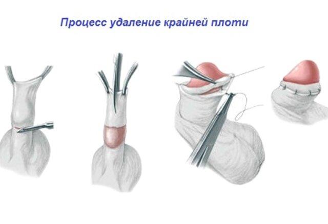 Мужское здоровье половой член обрезание