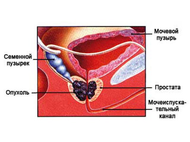 злокачественная опухоль простаты