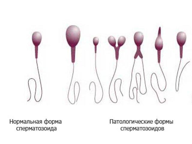 форма сперматозоида