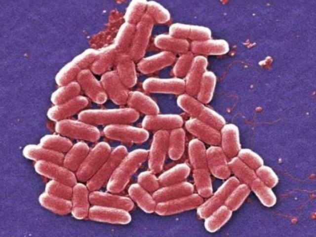 UR-бактерия