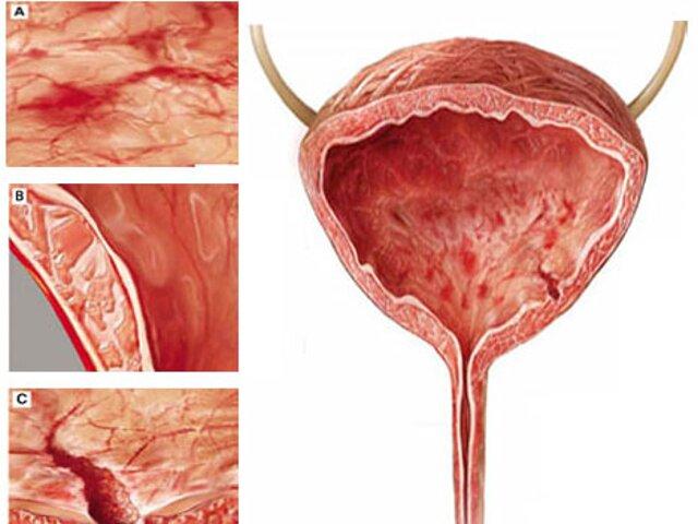Цистит с кровью у мужчин: симптомы и методы лечение
