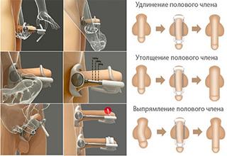 Массаж для увеличения члена как увеличить пенис массажем видео