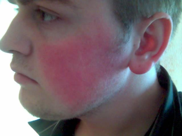 Что вызывает покраснение кожи лица у мужчин