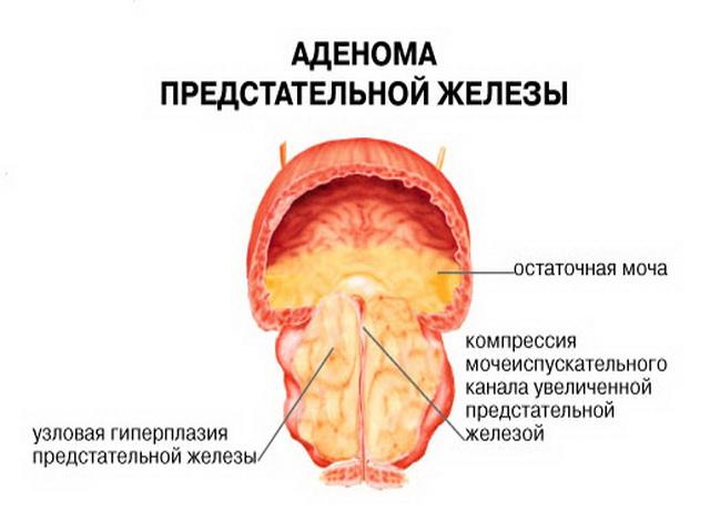 Аденома простаты операция как делается фото