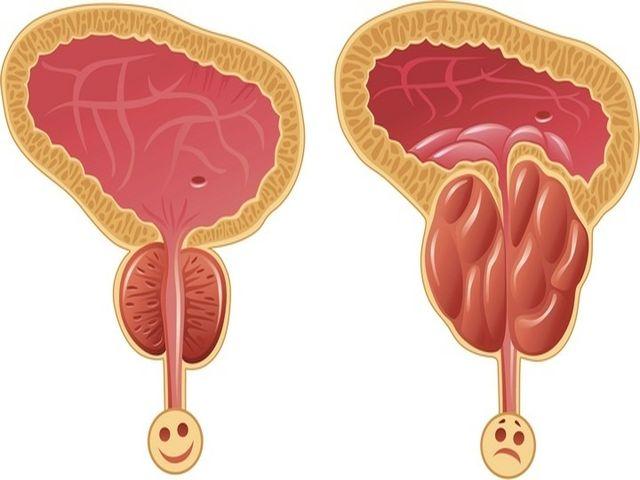 адама не зная гиперплазия предстательной железы