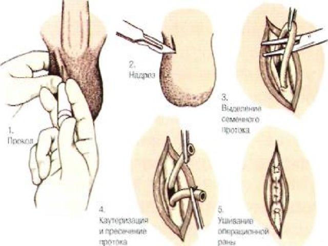 Пример операции