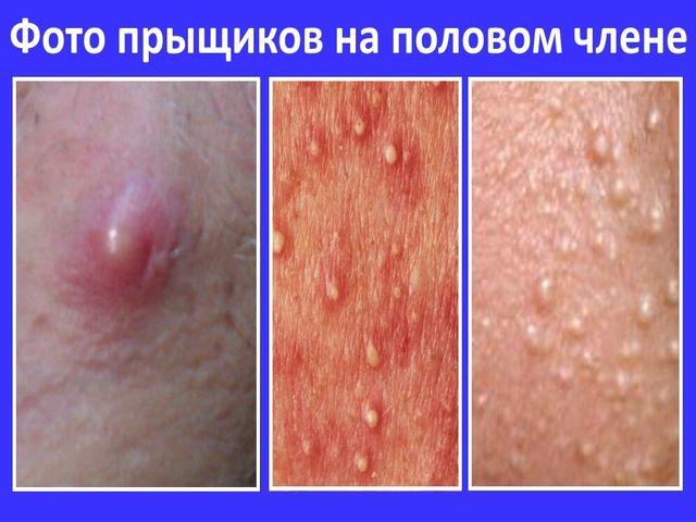 Член белые язвочки около уздечки боль