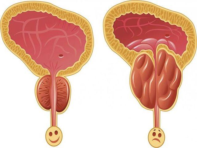 Застойный простатит у мужчин симптомы и лечение