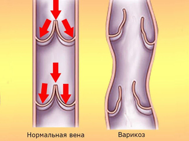 Схема здоровой и нездоровой вен