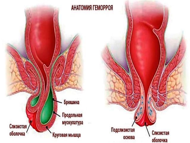 Геморройный Узел Лечение Дома
