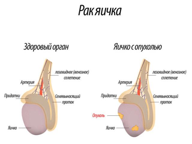 Боль в мошонке у мужчин факторы возникновения