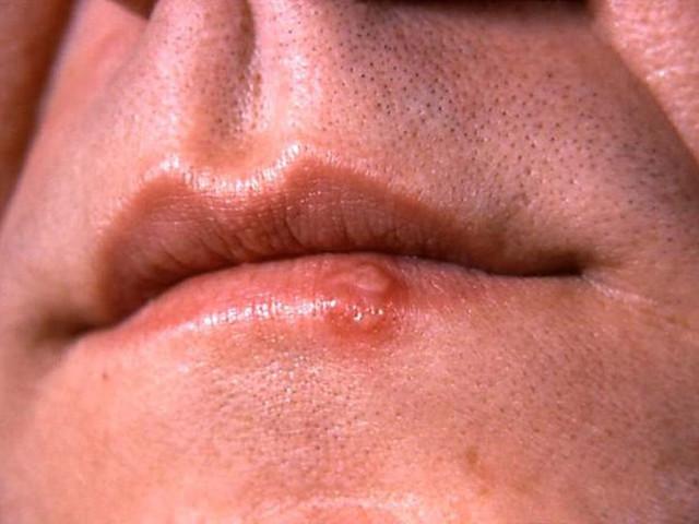 Поражение на губах