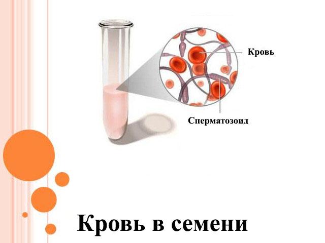 Гемоспермия является признаком