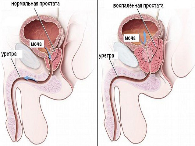 Частое мочеиспускание у мужчин лечение: таблетки