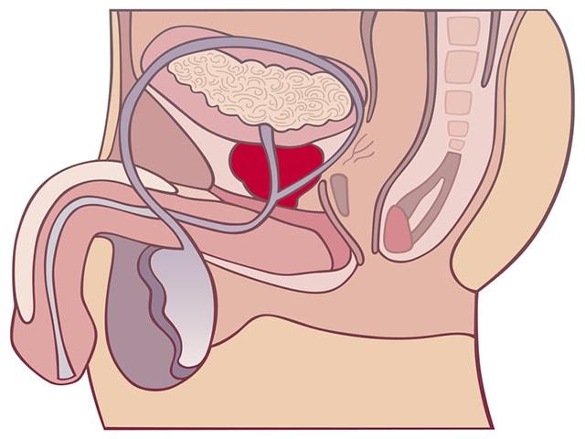 Прозрачная сперма простатит что такое хр калькулезный простатит