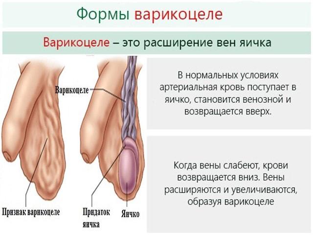 Влияет ли варикоцеле на потенцию у мужчин