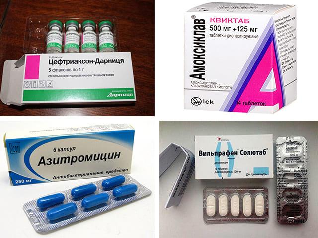 вильпрафен против простатита
