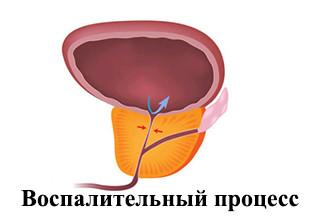 Что делать когда простата увеличена