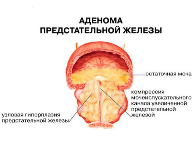 Размер и объем предстательной железы у мужчин