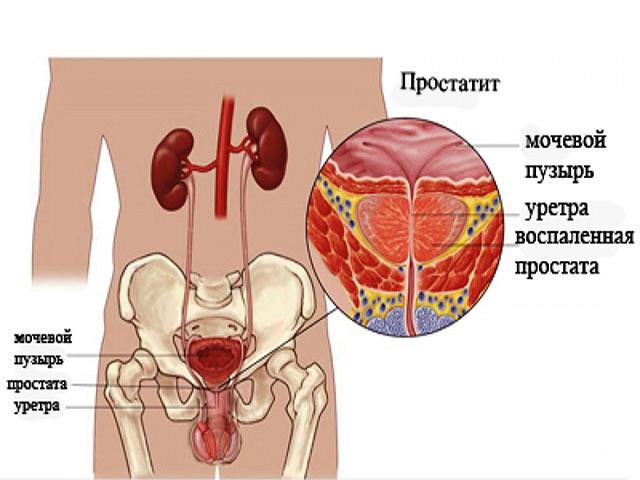 Что такое фиброз простаты  причины патологии симптомы и лечение