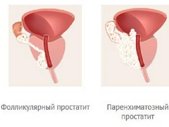Стадии простатита