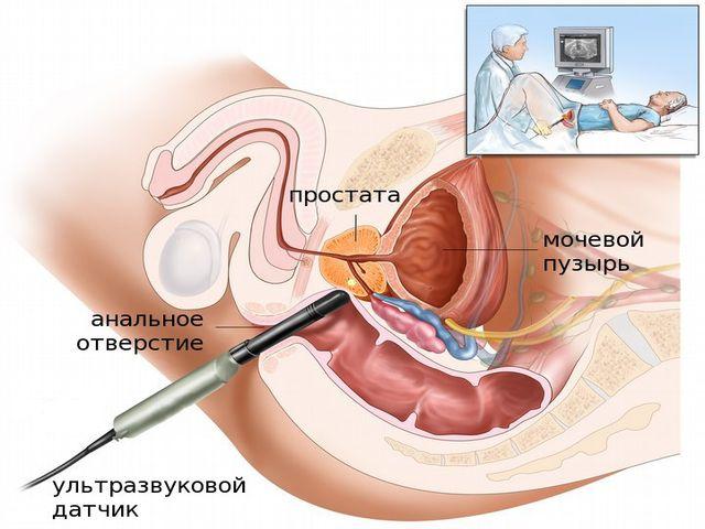 пальпация предстательной железы