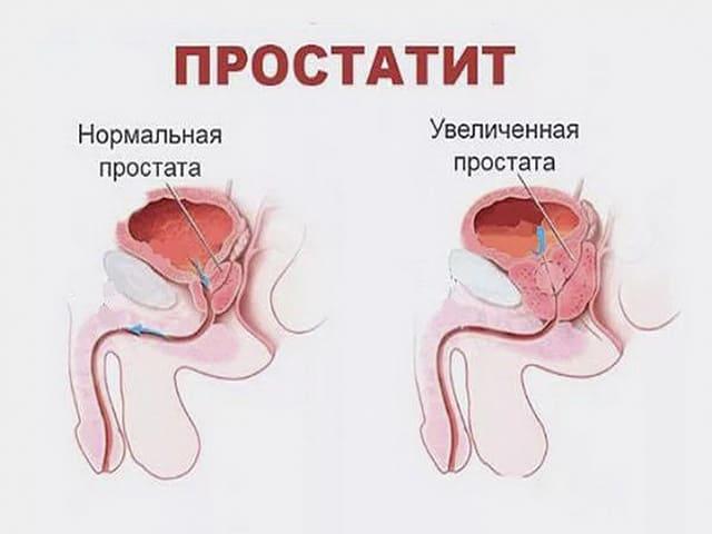 Нормальная простата