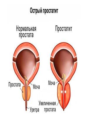 Острый простатит держится температура делают ли операции при простатите