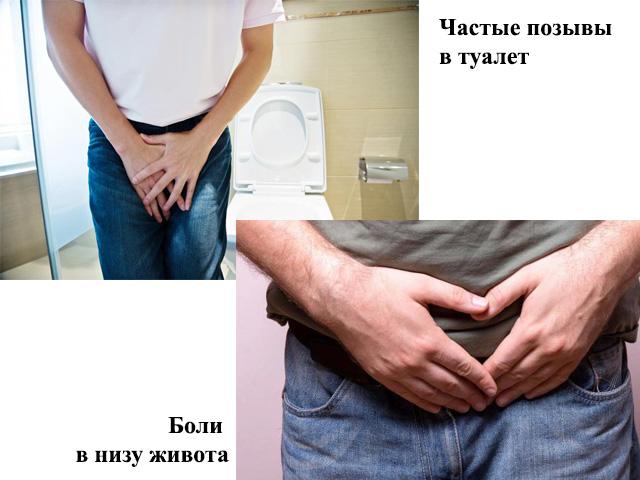 Простатит болит низ живота операция при хроническом простатите