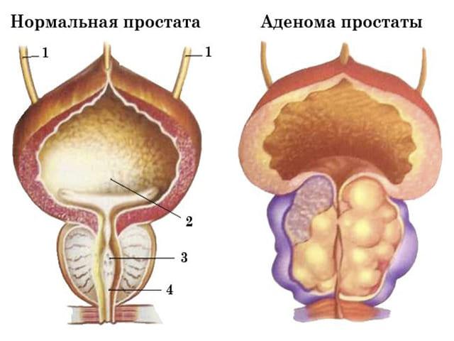 Аденоматозно стромальная гиперплазия предстательной железы