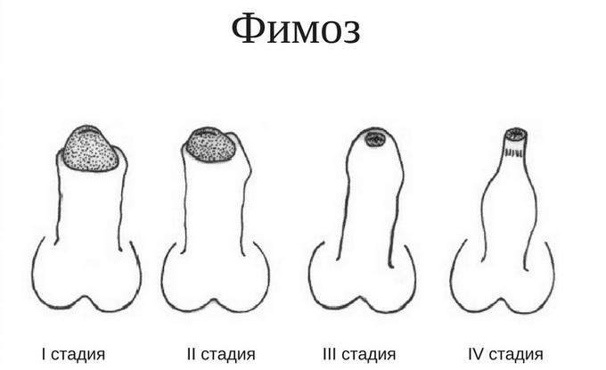 Лечение головки полового члена
