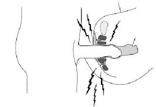 Как растянуть девственную плеву или удалить хирургически?